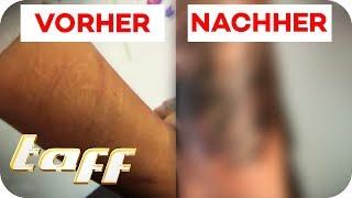 Cover Up für Narben vom Ritzen | taff | ProSieben