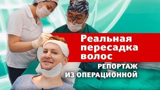 Пересадка волос с MAXIM // Андрей Бирин