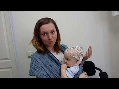 ППЦНС, кривошея у грудничка, родовая травма шейного отдела - отзыв лечении