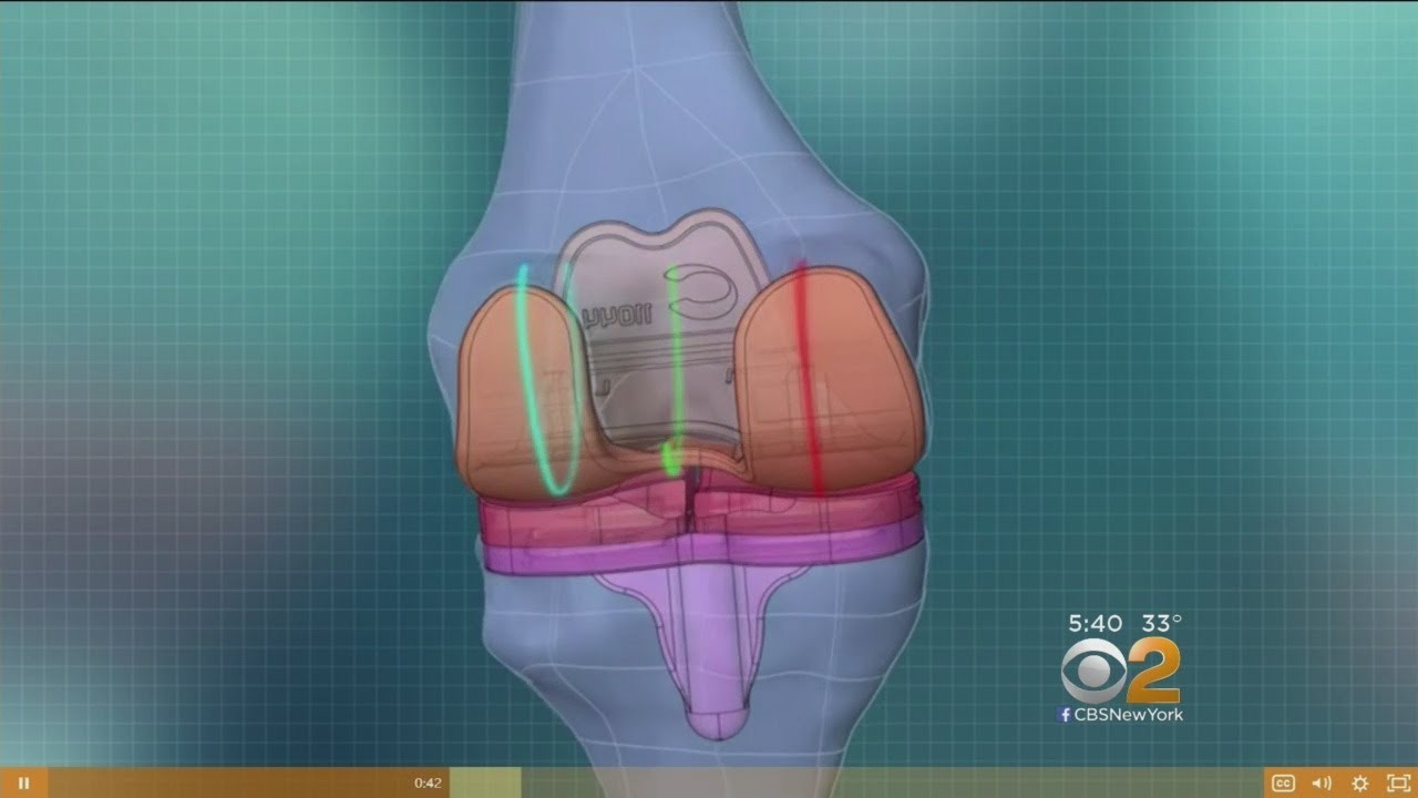 3D Printed Knees May Ease Replacement Surgery