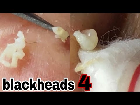 Blackheads .. Customers Have The Most Acne | B'Young Spa