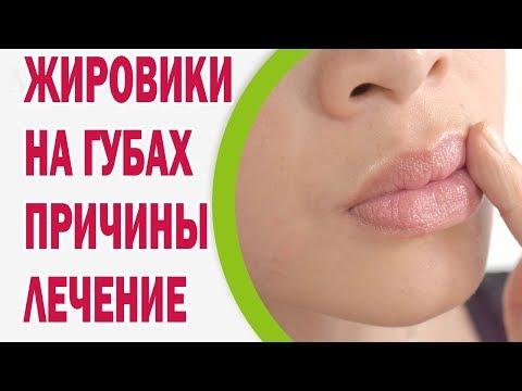 Жировики на губах: причины, лечение, профилактика