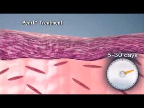 Cutera Pearl Resurfacing Laser Treatment in Singapore