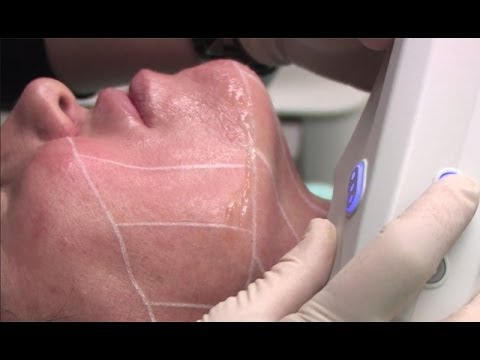 Ultherapy Non Invasive Skin Tightening With Cosmetic Surgeon Dr. George Davis