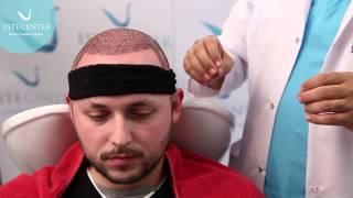 Placing a hat after hair transplantation