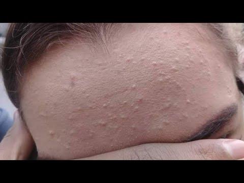 العاملين استعادة سكوير علاج الحبوب الصغيره تحت الجلد في الوجه Psidiagnosticins Com