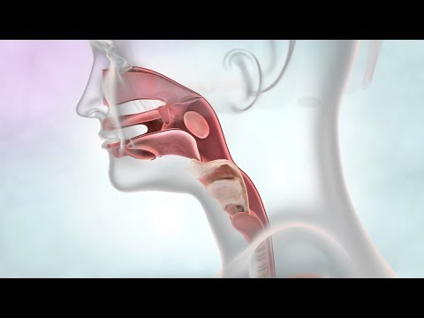 Throat Cancer - Know Your Throat | Cancer Research UK