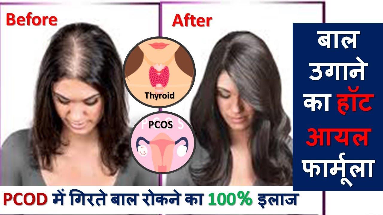 अनियमित पीरियड PCOD थाइरोइड में  गिरते बाल रोकने का 100% इलाज | Regrow Hairs