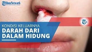 Gawat, Jika Mimisan Terus Menerus Bisa Jadi Tanda Kanker Nasofaring ! Begini Penjelasannya !.