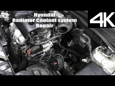 2006-2011-hyundai-accent-upper-lower-radiator-hose-replacement---pressure-testing-and-air-bleeding