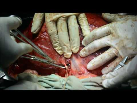Successful Removal of Large Kidney Tumor (5.5 kg)  - Dr Ajit Sawant