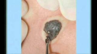 Squamous Cell Carcinoma, Actinic Keratosis, and Seborrheic Keratosis: a Dermatology Lecture.