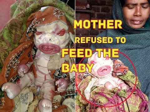 5 Bizarre horrible birth defects || Parents refused to feed