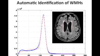 Resolving the White Matter Hyperintensity Prenumbra using FLAIR and Diffusion