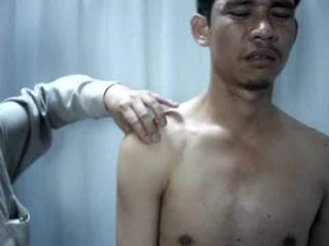 Biceps Bicipital tendinitis examination เอ็นหัวไหล่อักเสบ ...