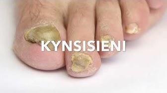 Kynsisienen hoito