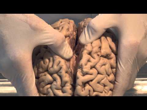 Brain Anatomy for Health Professionals - YouTube