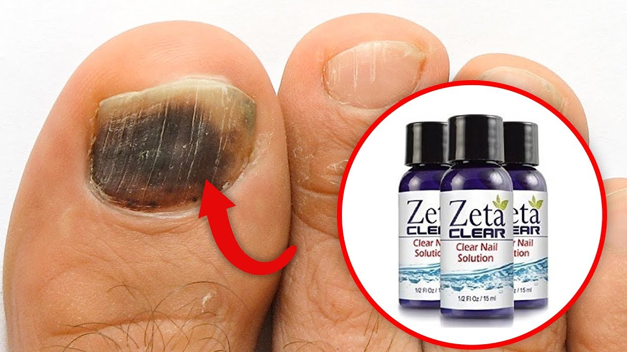 Toenail fungus treatment - Best natural treatment to remove toenail ...