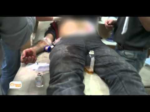أطباء الغوطة الشرقية يدقون ناقوس الخطر أمام نقص المواد الطبية