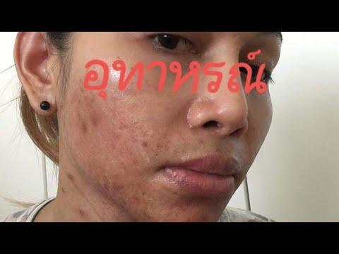 อุทาหรณ์ของคนใช้ครีมหน้าขาวเมืองไทย #สารสเตรอยด์ทั้งนั้น