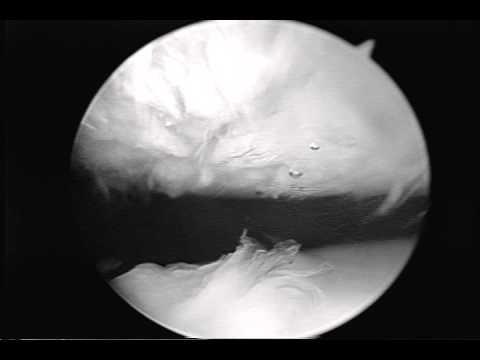 Arthroscopic Video Cartilage Injury Kneecap Patella - YouTube