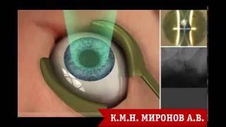 Операция ФРК глаза. М-ФРК(Операция ФРК. М-ФРК коррекция при лазерной коррекции близорукости, дальнозоркости, астигматизма. Видео,..., 2016-07-15T12:50:22.000Z)