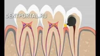 Восстановление зуба с помощью штифта(, 2008-11-10T21:28:09.000Z)