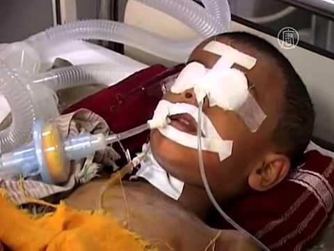 Дожди принесли в Индию эпидемию энцефалита (новости)