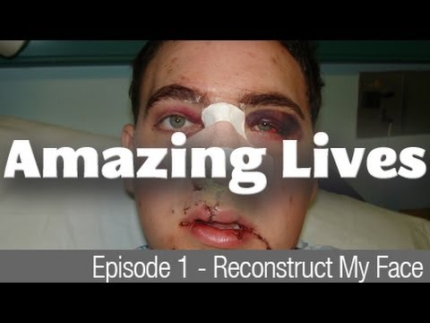 Amazing Lives - Reconstruct my face - Man's face rotting away from radiotherapy