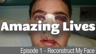 Amazing Lives - Reconstruct my face - Man