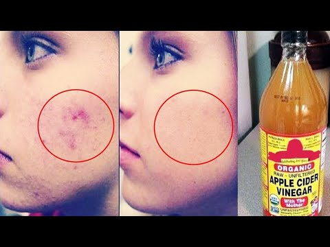 5-remedies-for-acne-scars-&-dark-spots