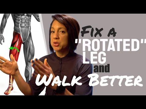 Fix a rotated leg