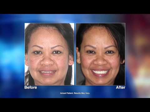 No More Dentures with Dental Implants with Fresno, CA Dentist Art Mirelez, DDS