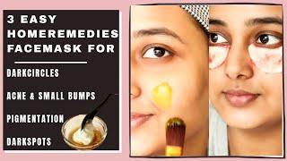 7 Days challenge - Top 3 Home Remedies to Remove Darkcircles, Acne, pigmentation, darkspots permanen
