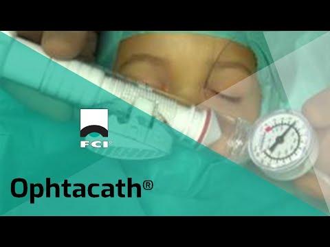 Vignette Vidéo | Dacryocystoplastie avec l'Ophtacath®