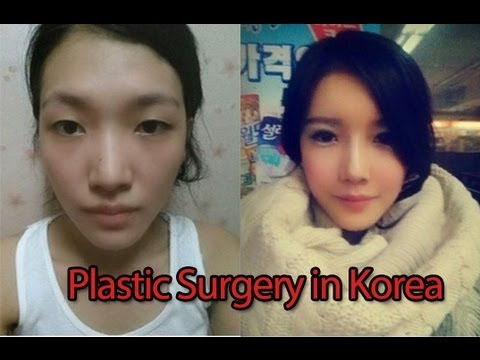 Why Koreans Get So Much Plastic Surgery