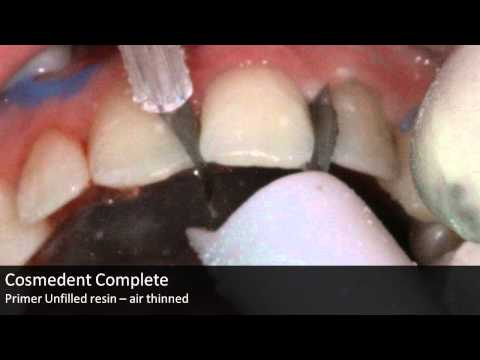 Composite restoration - Chipped Incisors