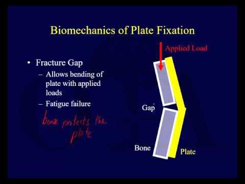 Orthopaedic Implants 1