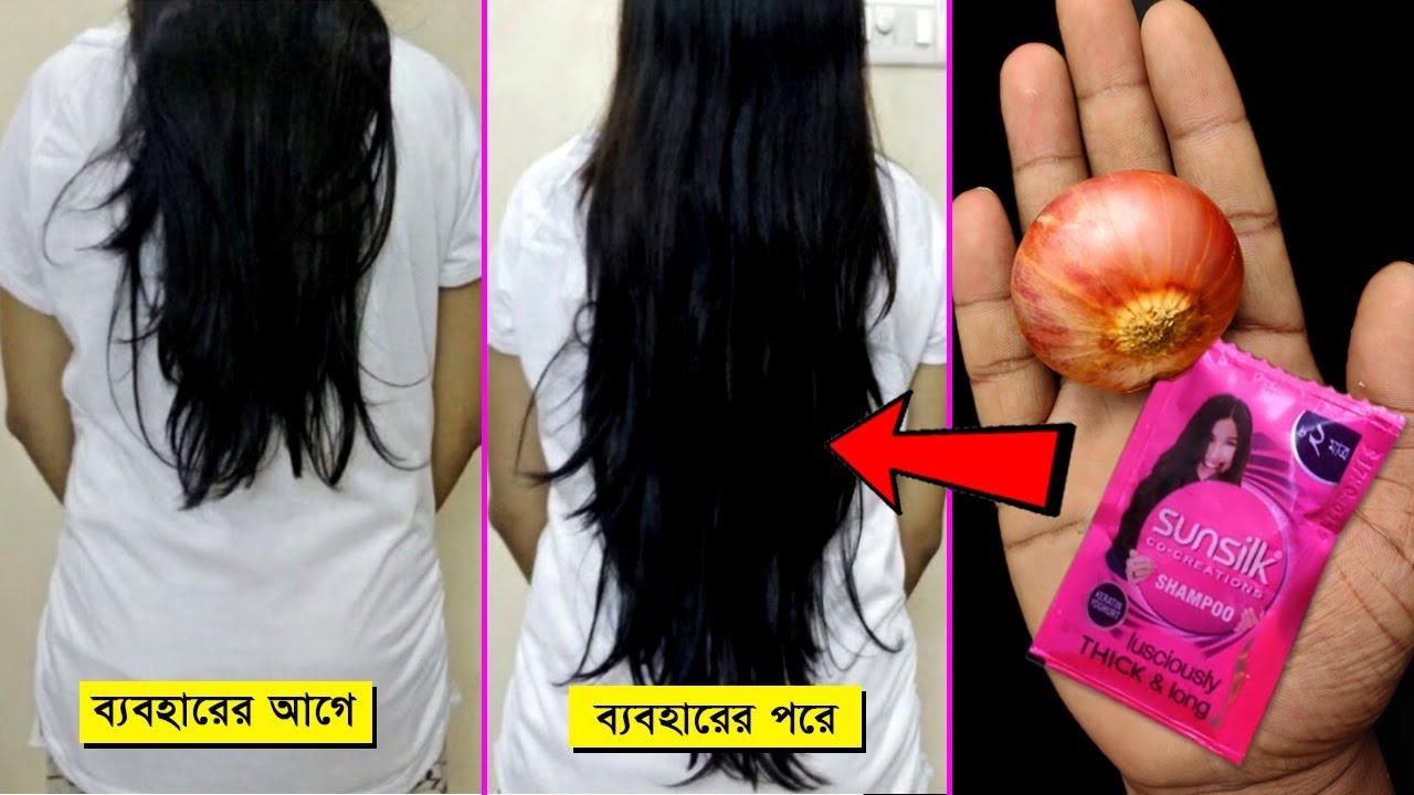 Shampoo তে মিশিয়ে নিন ব্যস এই 3টি উপাদান😉আপনার চুল কোন Actor এর থেকে 👍 কম হবেনা Get long hair👩🏻