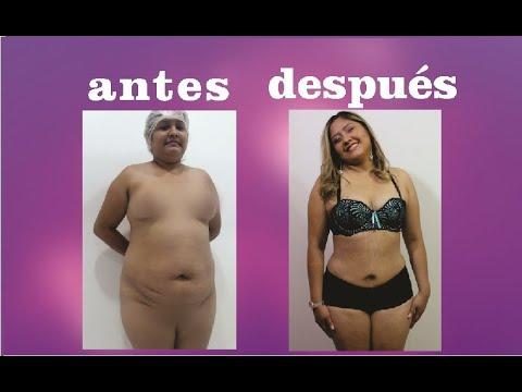 mini abdominoplastia antes y después fotos
