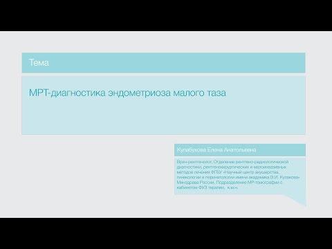 """Лекция """"МРТ-диагностика эндометриоза малого таза"""""""