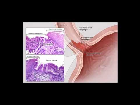 How To Cure Barrett's Esophagus Naturally | Natural Remedies for Barrett's Esophagus