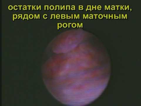 Железисто-фиброзный полип эндометрия – удаление и лечение