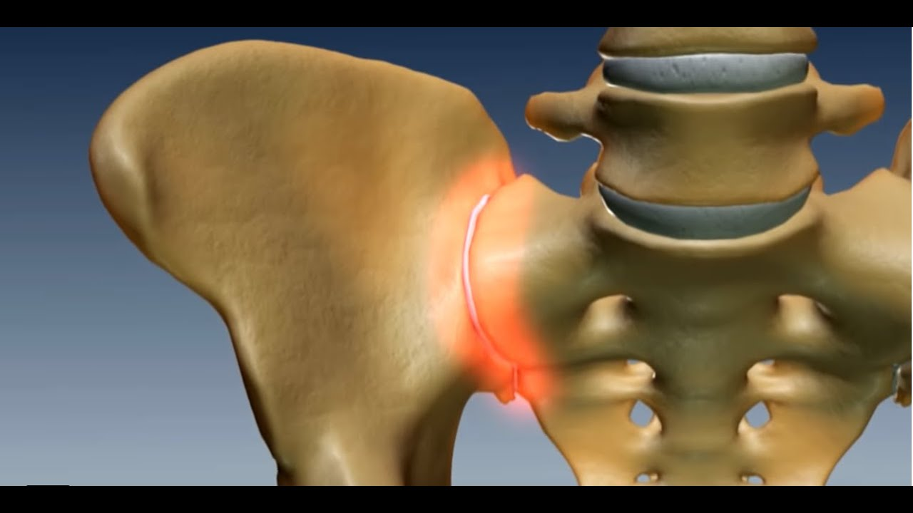 Where Is The Sacroiliac Joint Anatomy Of The Sacroilac Joint Youtube
