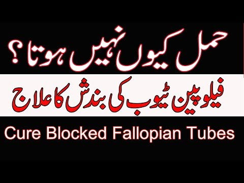Fallopian Tube Blockage Treatment | Tube Block Ka Ilaj By Dr Naveed