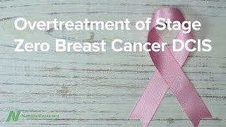Zbytečné léčení u nultého stupně rakoviny prsu typu DCIS