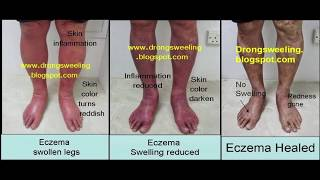 Miraculous Treatment for Eczema in Singapore at Yong Kang Medical Hall, Tel: 96635600, 62726400