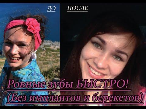 Имплантация зубов Киев -