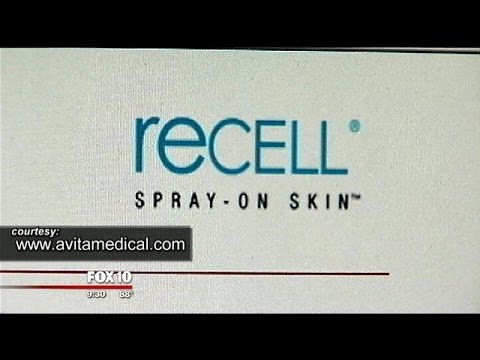 Experimental Spray On Skin Treatment Helps Burn Patients Recover