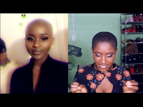 HAIR GROWTH UPDATE + FACTS ABOUT BEING BALD